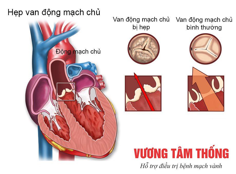Hẹp van động mạch chủ - bệnh van tim nguy hiểm hiếm gặp
